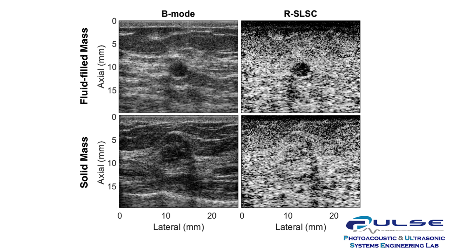 Example images from Muyinatu Bell's PULSE Lab, demonstrating the ability of Robust Short-Lag Spatial Coherence (R-SLSC) beamforming, a technique developed in the PULSE Lab, to differentiate between fluid-filled and solid breast masses. The top row shows a fluid-filled cyst from one patient treated at the Johns Hopkins Hospital, while the bottom row shows a solid cancerous tumor from another patient. The standard B-mode ultrasound imaging method used in breast clinics today (left) shows the two masses as similarly darker than the surrounding tissue. However, the R-SLSC images (right) show improved contrast in the benign fluid-filled cyst and solid content in the malignant mass.