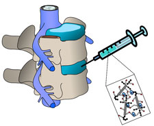 Schematic shows where injection would occur.