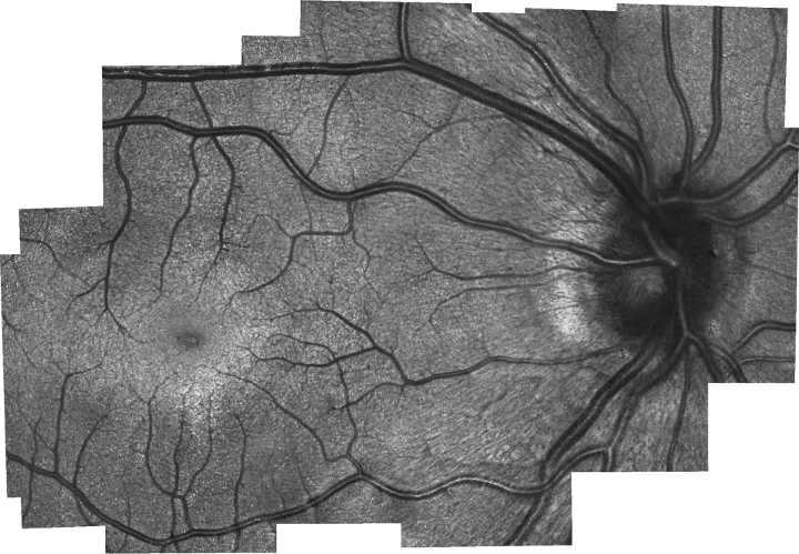 An image of a retina taken with the new handheld probe. The tiny white dots are photoreceptors called cones, which were not able to be seen with previous handheld technologies. The concentrated circular area is called the fovea. It is believed that, as the eye matures, photoreceptors migrate to this area, making it much more densely populated than others.