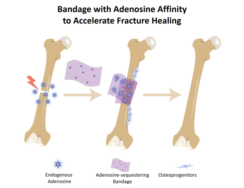 A cartoon graphic depicting a bandage that attracts molecules and traps them near a bone break