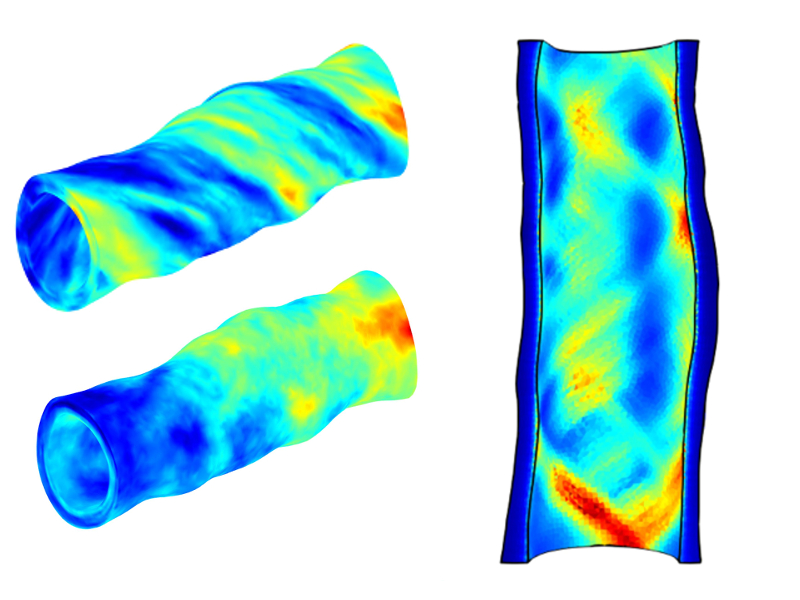 A pair of three-dimensional arterial models color coded to show simulated stresses and a long, cross-sectional view of an average of the stresses taken from many different models