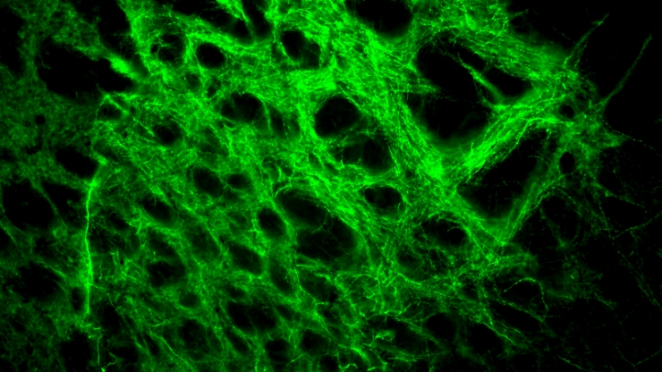 A fluorescent green tangled web against a black background