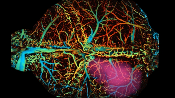 This high-resolution photoacoustic and fluorescent image of a mouse brain shows the brain's oxygenation from green (veins) to red (arteries) and the neural activation region is purple.