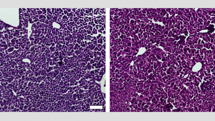 Histological sections of liver from control mice treated with saline (left) and the CRISPR/Cas9 epigenetic repression system in which cholesterol levels were lowered (right) show generally normal and healthy tissue