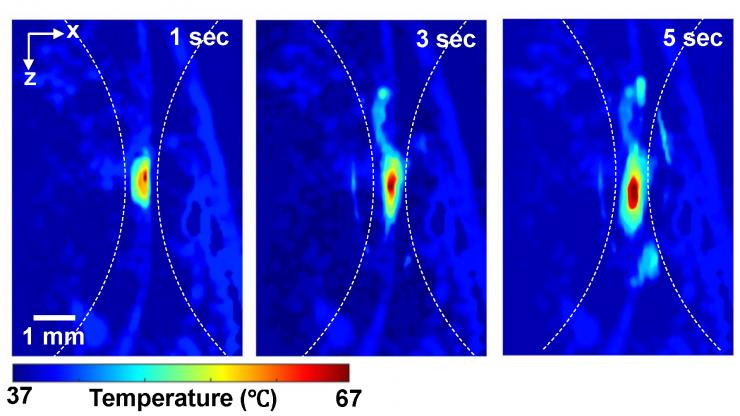 Photoacoustic imaging shows the absolute temperatures elevated by high-intensity focused ultrasound in small animal models at one, three and five seconds.