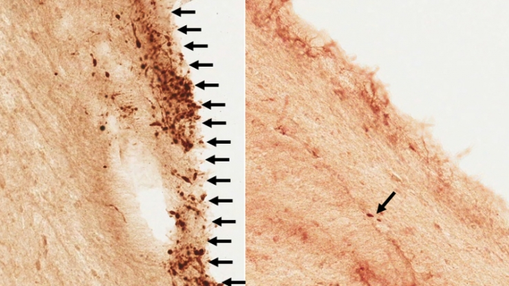 A look at the cellular difference between brain cells involved in a severe concussion (left) versus a minor concussion (right).