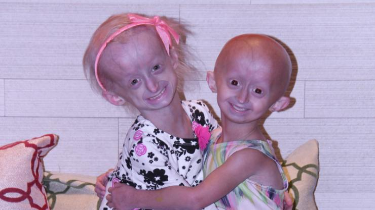 progeria patients