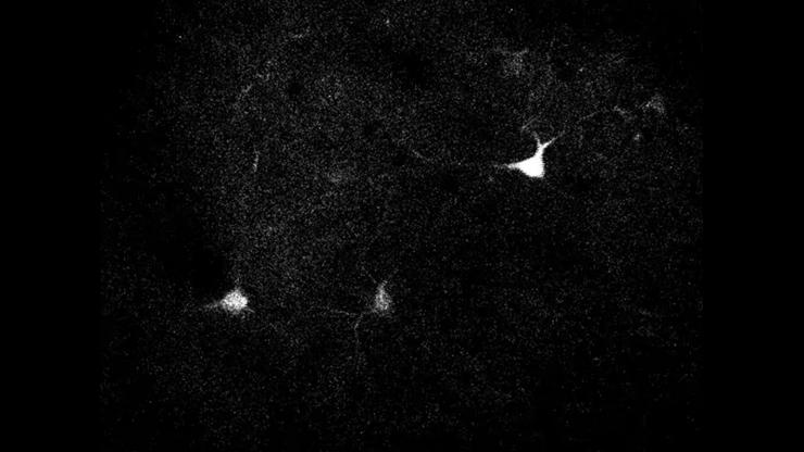 Two-photon imaging shows neurons firing in a mouse's brain.