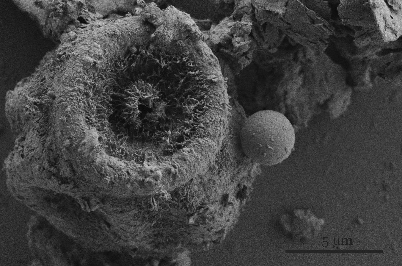Image of possible fungal particulate matter taken with SEM