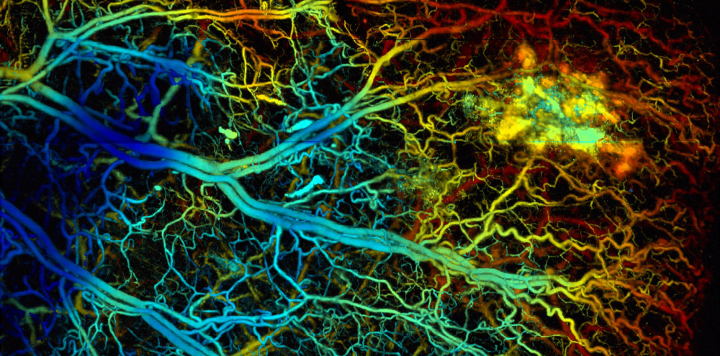 A look at neurons in the brain using photoacoustic tomography